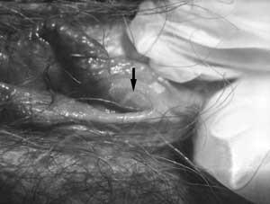 blisters-on-the-vulva