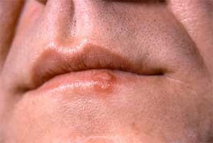 herpes-lip-man